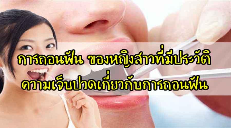 การถอนฟัน